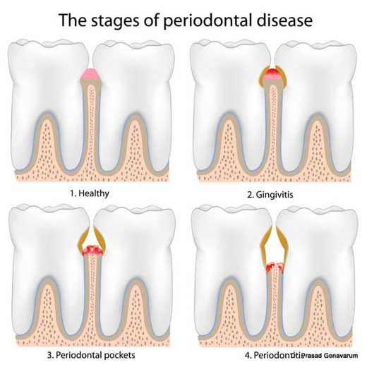 periodontal disease la mesa