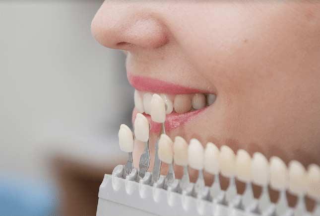 dental veneers la mesa