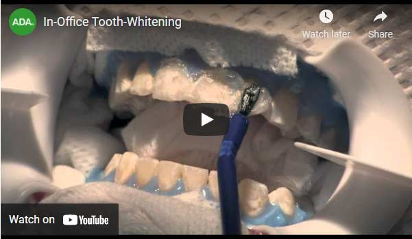 In-Office Tooth-Whitening