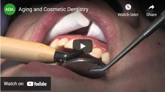 Aging and Cosmetic Dentistry