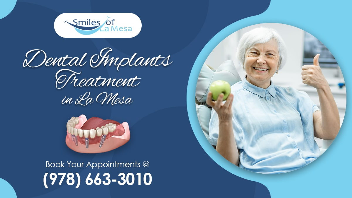 Are you a suitable candidate for dental implant treatment in La Mesa?