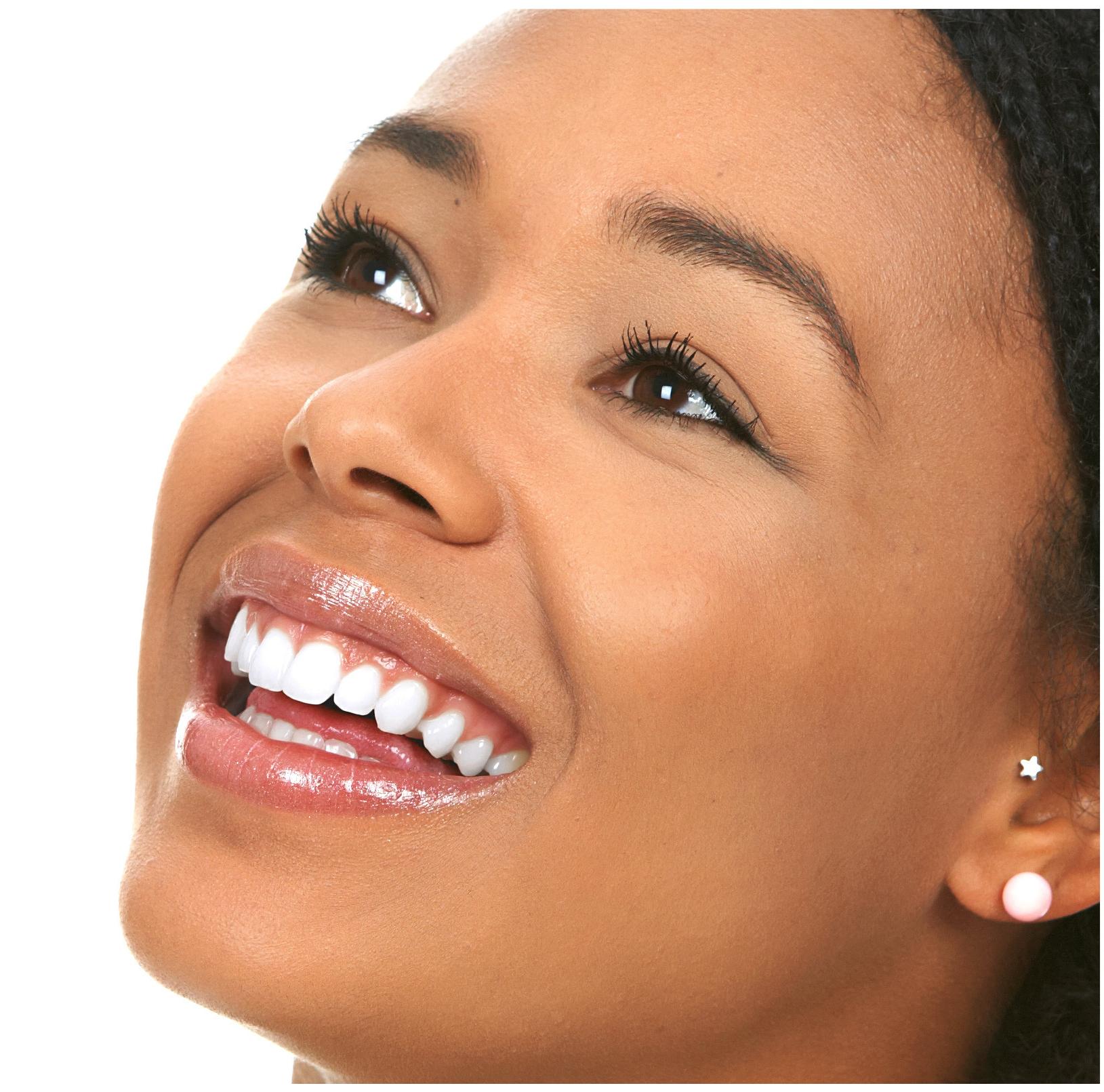What is Dental Sealants?