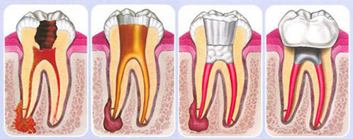 Should I be afraid of Root Canal Therapy
