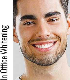 in office teeth whitening